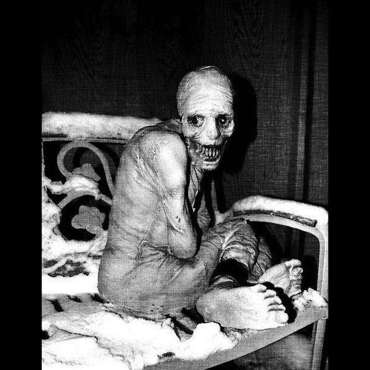 Lesch-Nyhan - Lesch-Nyhan Syndrome