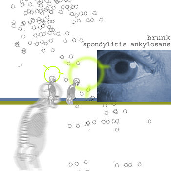 spondylitis ankylosans cover art